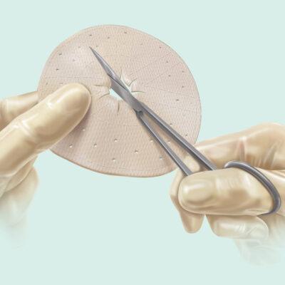 Cook® Medical Biodesign® Parastomal Graft