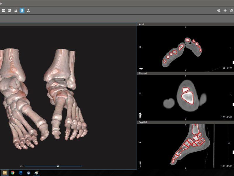 Orthopedics_Ankle_2