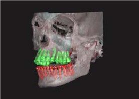 Teeth Module