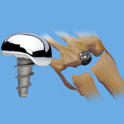 Arthrosurface WristMotion®